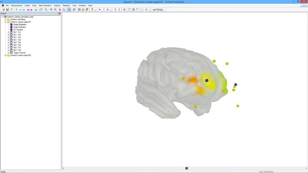 使用Polhemus数字化仪和OxySoft对MNI脑模型进行3D数字化和融合